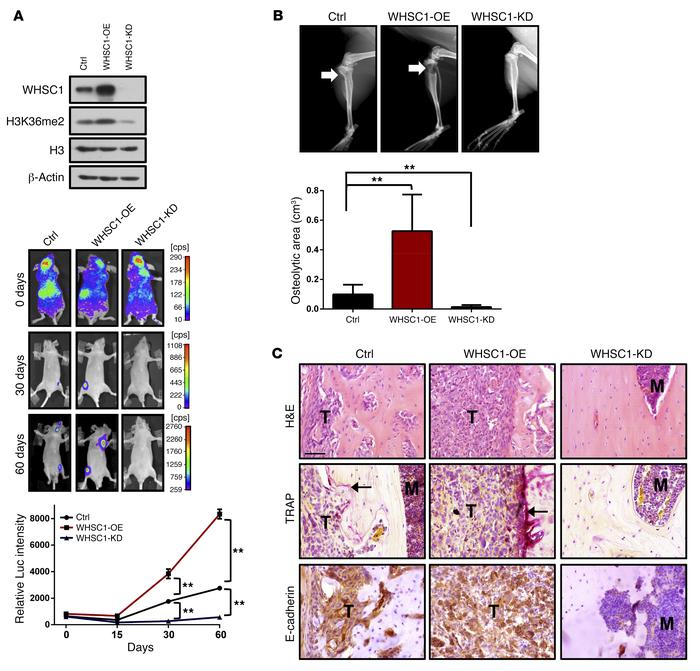 Ex vivo bone metastasis analyses of animals injected with WHSC1-depleted...