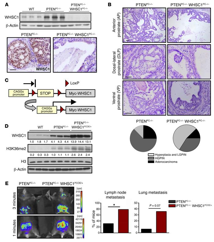 WHSC1 promotes PCa metastasis. (A and B) Inactivation of WHSC1 inhibits ...