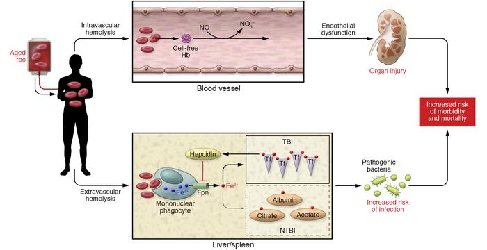 Schematic representation of aged rbc transfusion effects. Intravascular ...