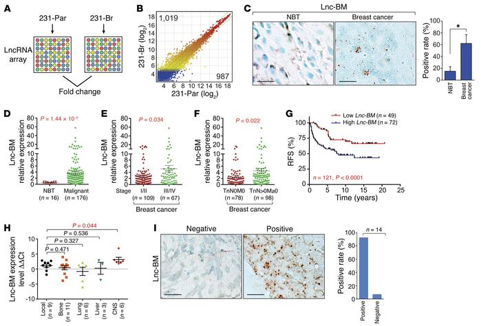 Lnc-BM correlates with breast cancer and BCBM. (A and B) LncRNA profilin...