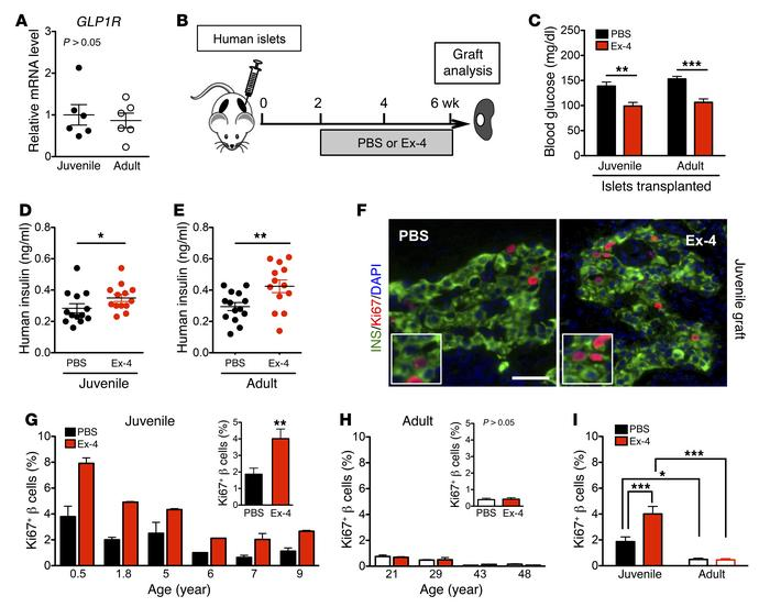 Ex-4 promotes β cell proliferation only in juvenile islets. (A) Both juv...