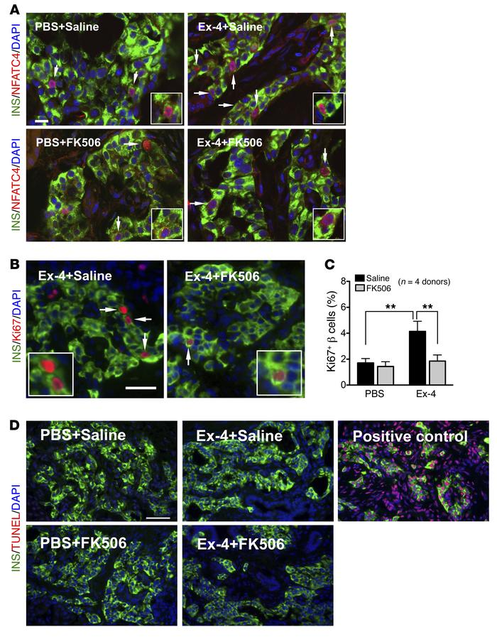 Calcineurin/NFAT signaling mediates the mitogenic effect of Ex-4 in juve...