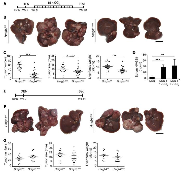 HMGB1 promotes hepatocarcinogenesis in the presence but not the absence ...