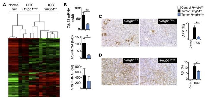 HMGB1 promotes tumor dedifferentiation and the progenitor signature. Tum...