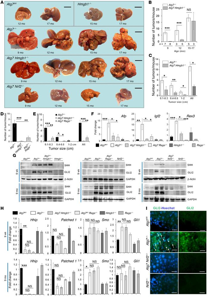 HMGB1 and RAGE promote tumorigenesis in autophagy-deficient livers. (A) ...