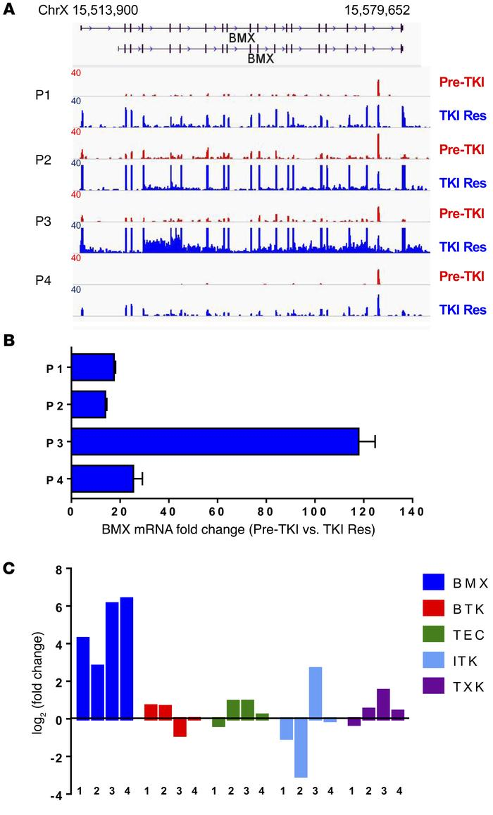 Transcriptional upregulation of BMX in AML patients during sorafenib res...