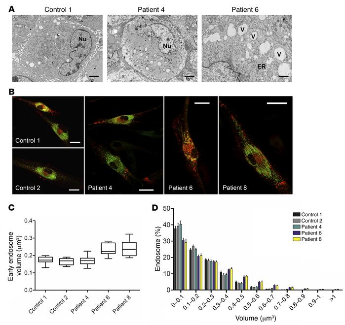 Analysis of the effect of SAMD9 mutations on cell structure and endosome...