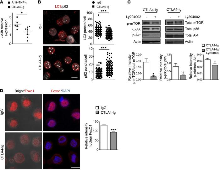 CTLA4-Ig diminishes autophagy pathway in human DCs and promotes FoxO1 nu...