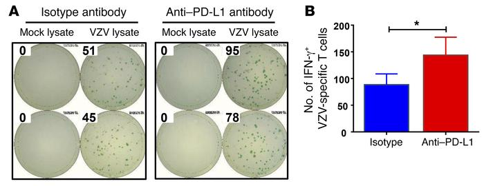 Blocking PD-L1 corrects VZV response in patients with CAD. PBMCs were is...