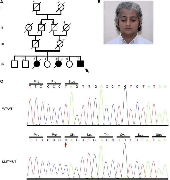 Identification of a causative mutation in MDM2. (A) Pedigree of a consan...