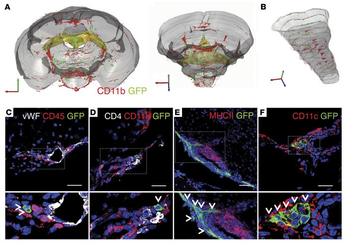 Transplanted NPCs distribute in the subarachnoid space within the inflam...