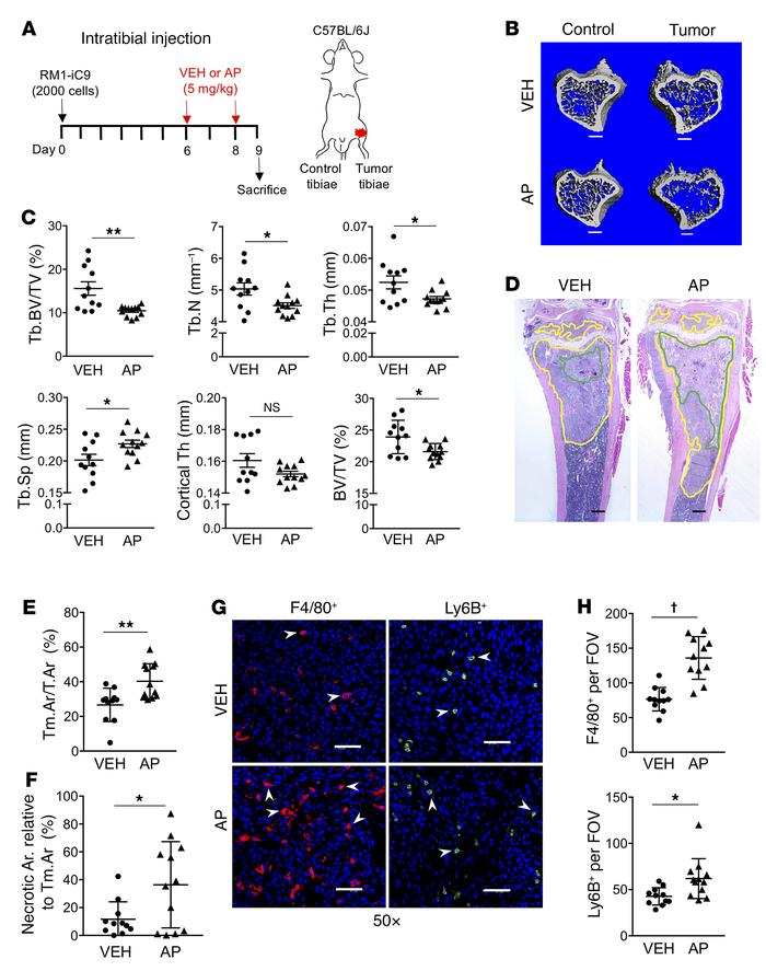 Cancer cell death induces accelerated tumor growth and bone osteolysis i...