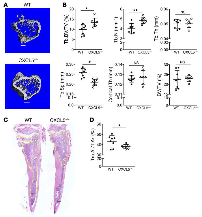 CXCL5 deficiency hinders tumor growth and bone osteolysis in the intrati...
