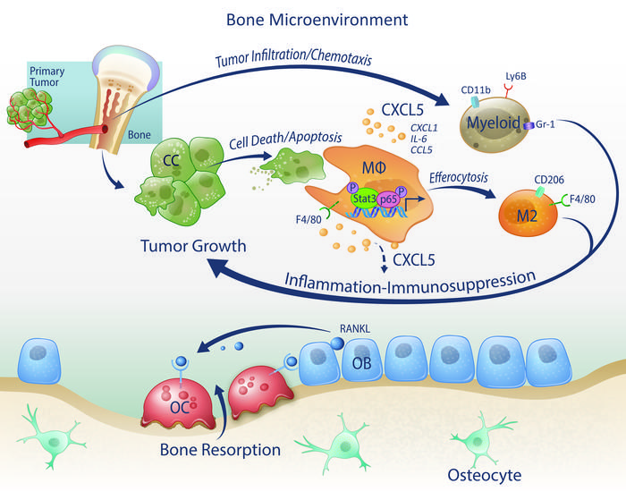 Model of efferocytosis-induced prostate cancer tumor growth in the bone ...