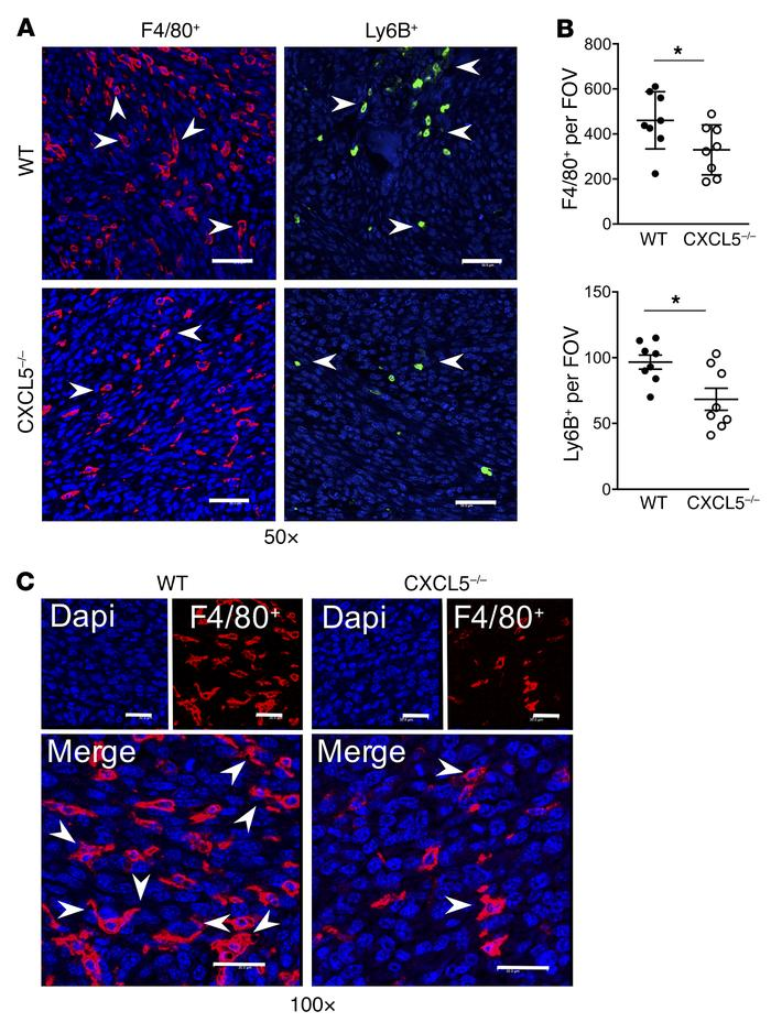 F4/80+ and Ly6B+ infiltration into tumor vossicles is hindered in CXCL5–...