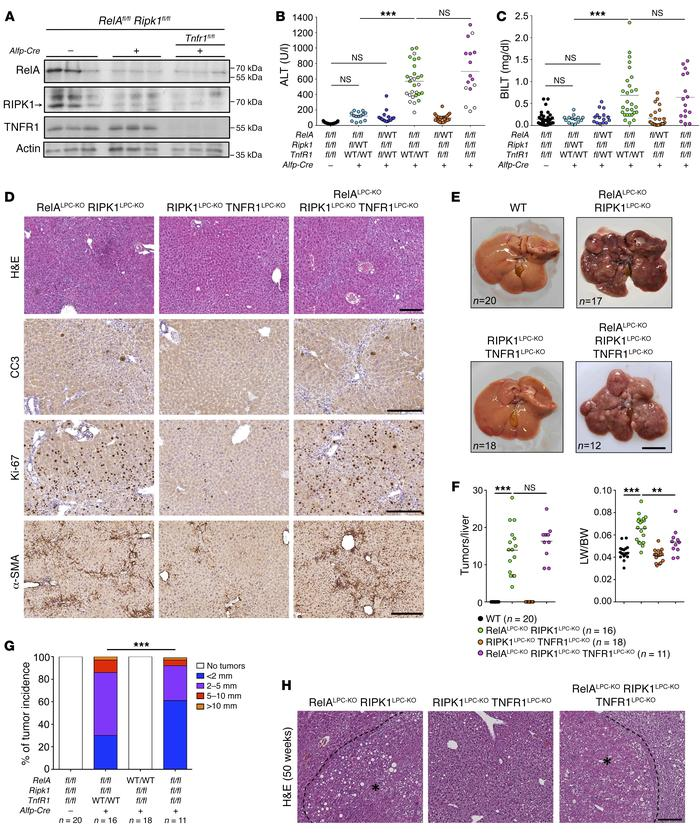 RIPK1 and RelA cooperate to prevent spontaneous hepatocyte death and HCC...