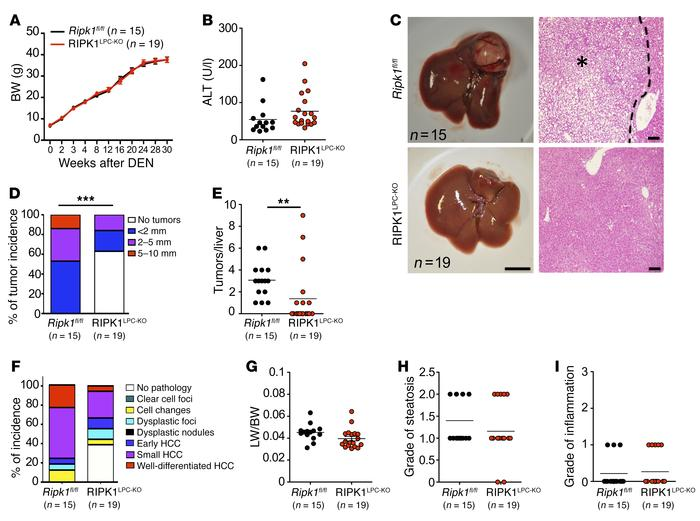 RIPK1 promotes DEN-induced liver tumorigenesis. (A and B) Graphs depicti...