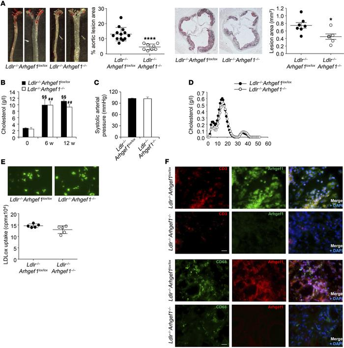 Deletion of the RhoA exchange factor Arhgef1 inhibits atherosclerosis. (...