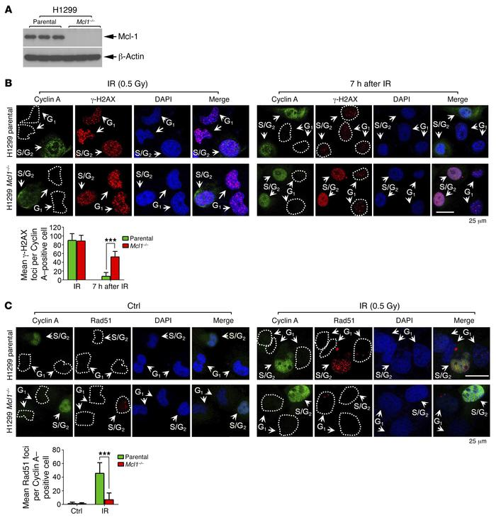 Mcl-1 is essential for DSB repair via HR in S/G2 cells. (A) Endogenous M...