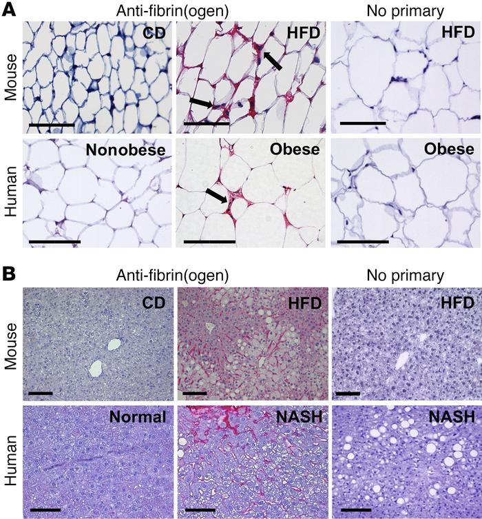 Fibrin(ogen) deposits accumulate in white adipose tissue of HFD-fed mice...