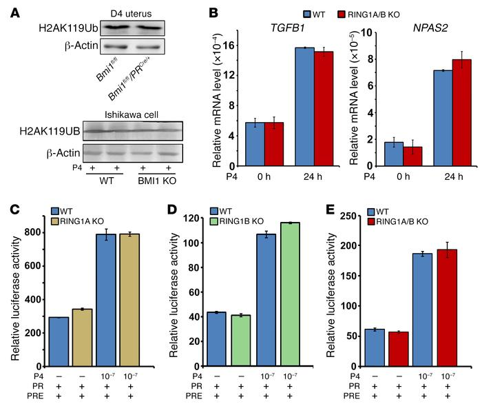 BMI1 regulates progesterone-PR transcriptional activity in a polycomb co...