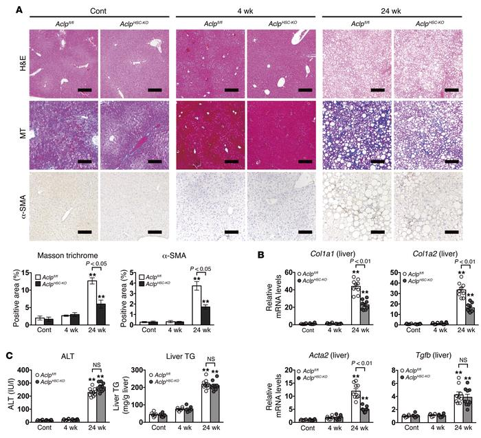 HSC-specific ACLP deficiency inhibits progression of liver fibrosis in m...