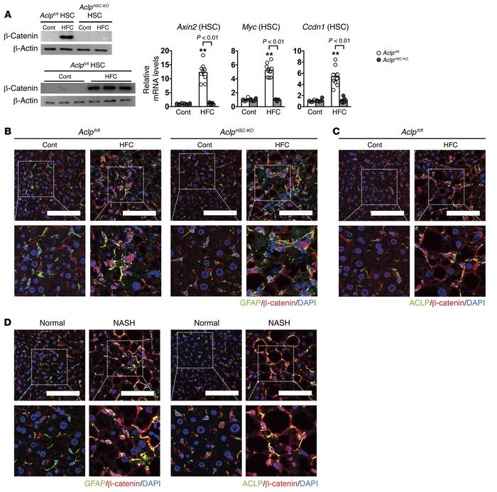 ACLP expression in HSCs plays a major role in canonical WNT pathway acti...