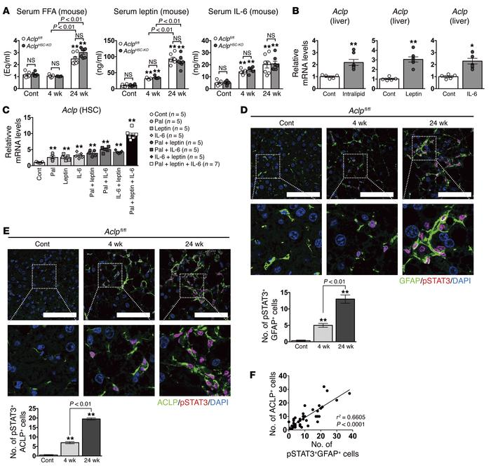 Obesity-related factors in serum enhance ACLP production in HSCs via act...