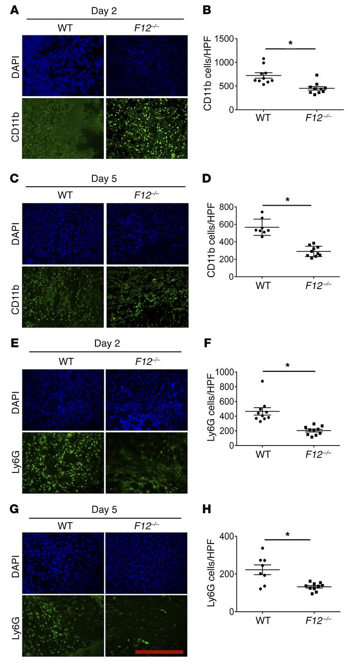 FXII influences leukocyte migration into skin wounds. (A and C) Frozen s...