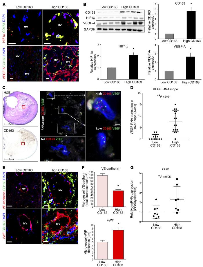 Alternative CD163+ macrophages are associated with intraplaque angiogene...