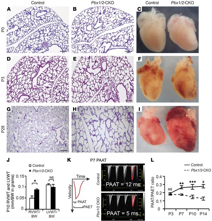 Pbx1/2-CKO mice exhibit abnormal postnatal lung development, progressiv...