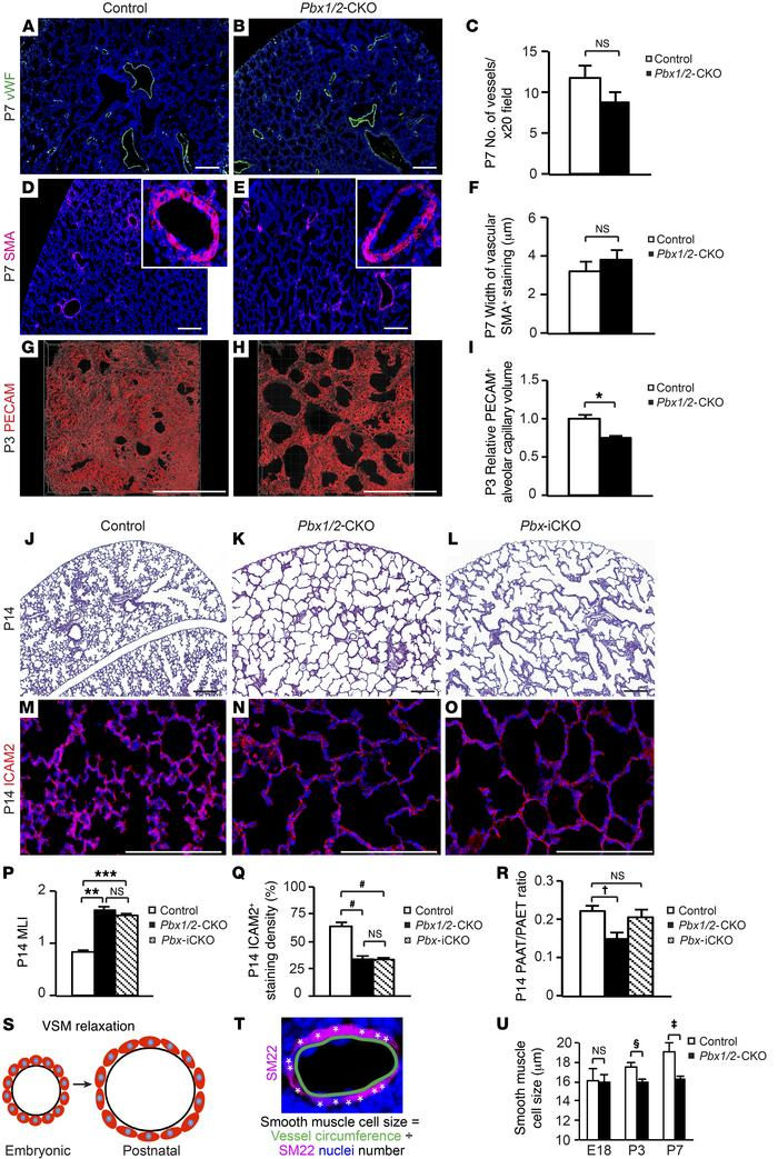 PH in Pbx1/2-CKO mice is associated with failed VSM relaxation after bir...