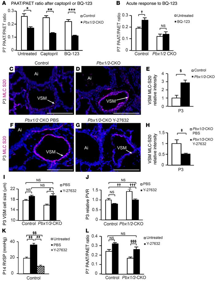 Abnormal VSM contraction in Pbx1/2-CKO mice is reversed by treatment wit...
