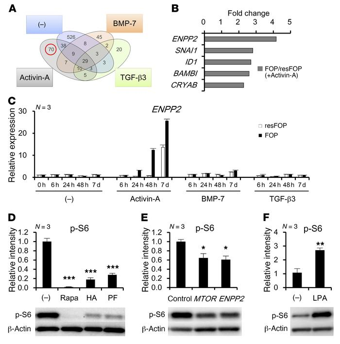 ENPP2 mediates enhanced mTOR signaling in chondrogenic induction of FOP-...