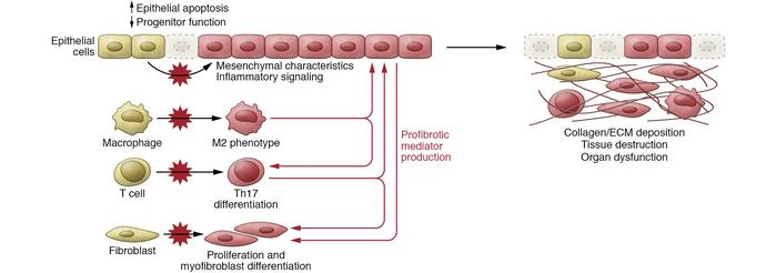 Mechanisms of fibrosis related to ER stress. In epithelial cells, ER str...