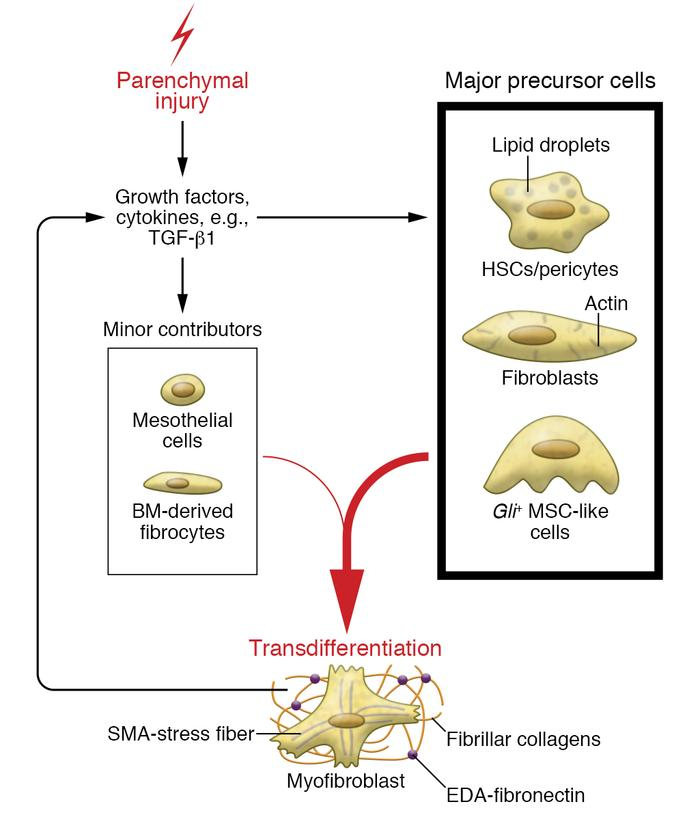 Transdifferentiation of precursor cells into fibrogenic myofibroblasts. ...