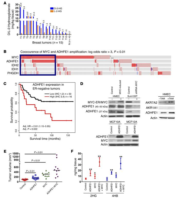 Co-occurrence of ADHFE1 and MYC amplifications in human breast tumors an...