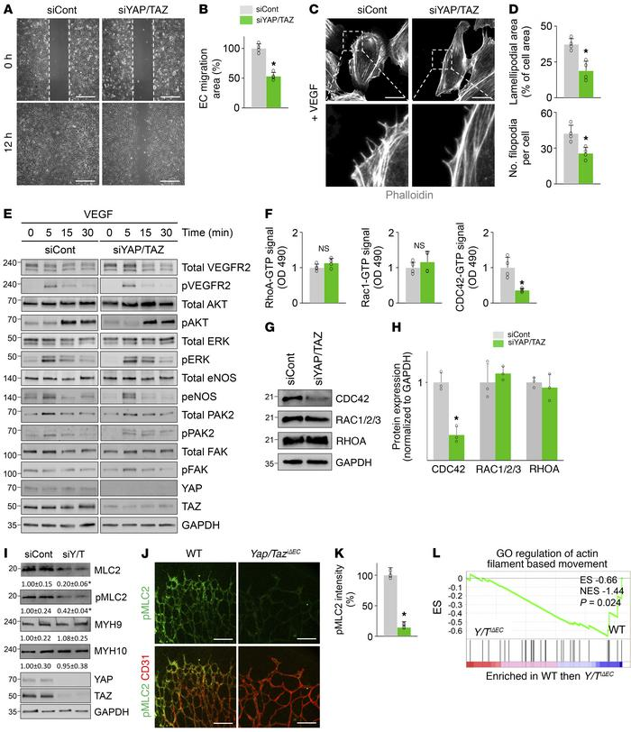 YAP/TAZ depletion impairs EC migration and filopodia/lamellipodia format...