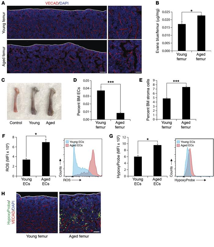 Aged BM vasculature displays functional alterations in vivo. (A) Represe...