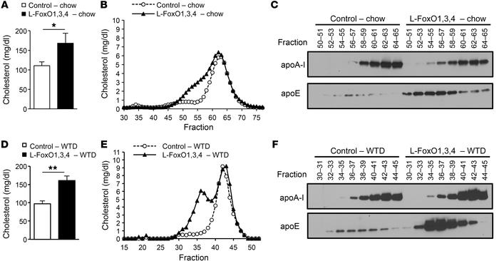 Plasma cholesterol profiles of chow-fed and WTD-fed L-FoxO1,3,4 mice. (A...