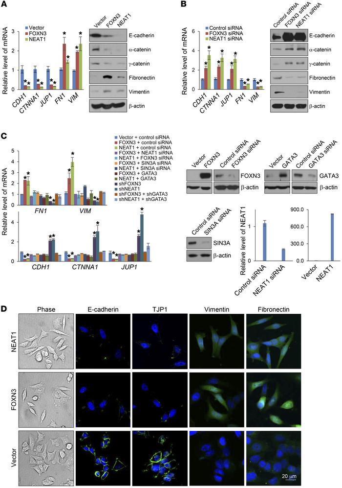 The FOXN3-NEAT1-SIN3A complex promotes EMT. (A) MCF-7 cells were transfe...