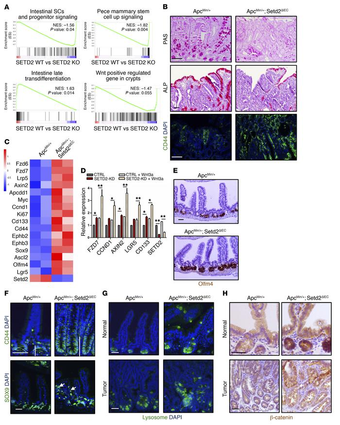 SETD2 loss stimulates Wnt-induced transformation and stemness programs. ...