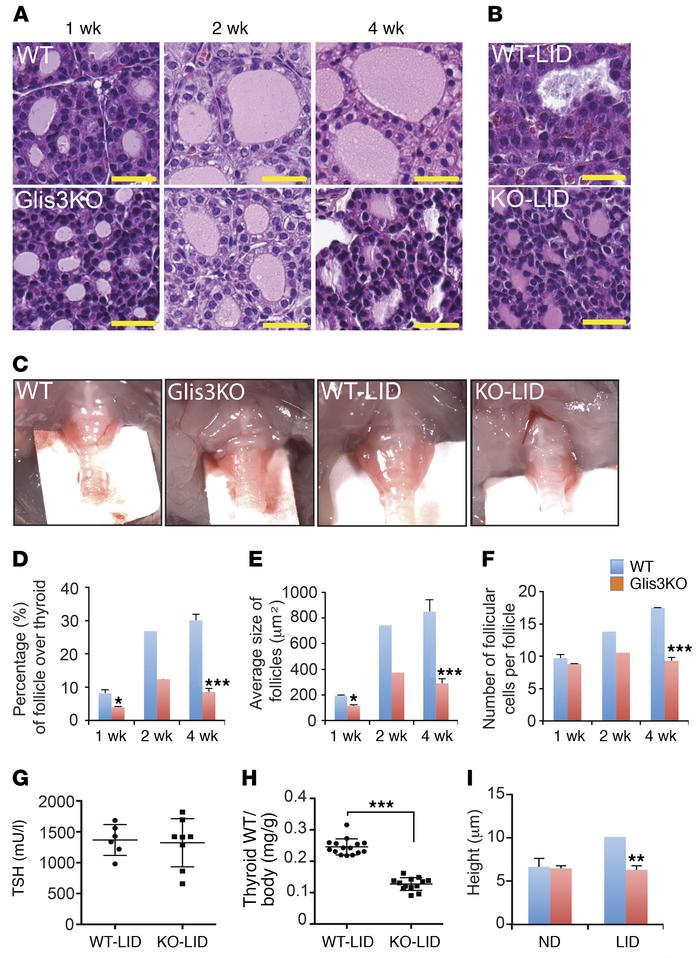 GLIS3 deficiency inhibits thyroid follicular cell proliferation and prev...