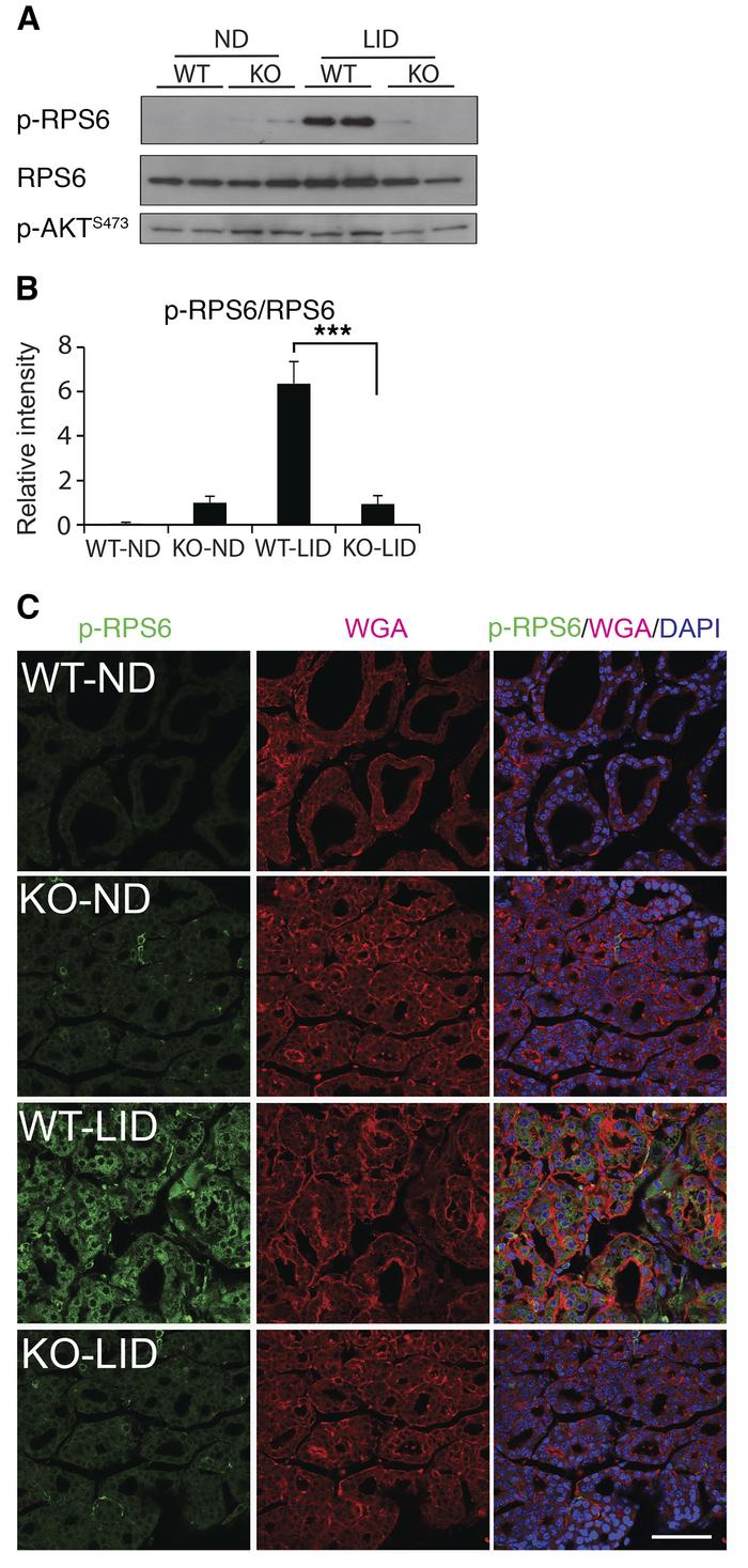 TSH/TSHR-mediated activation of the mTORC1 signaling pathway is impaired...