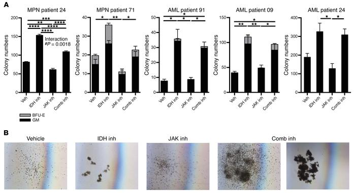 Human IDH2R140Q JAK2V617F MPN and AML samples in methylcellulose respond...