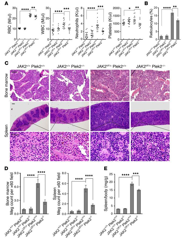 Loss of Plek2 ameliorates JAK2V617F-induced myeloproliferative phenotype...