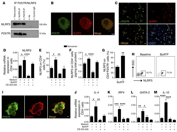 Existence of a P2X7R/NLRP3 pathway within human CD4+ T cells. (A) P2X7R ...