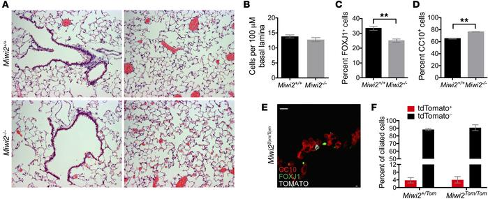 MIWI2 regulates pulmonary epithelial cell composition. (A) H&E stain...