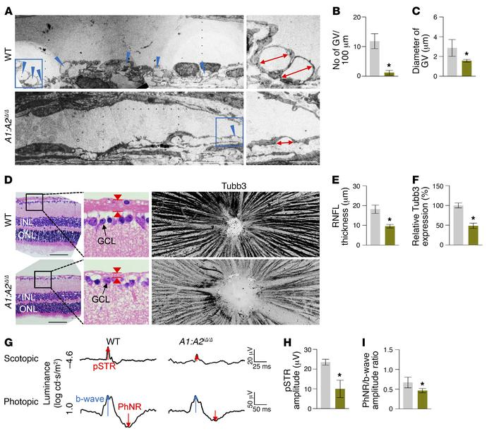 SC regression in A1:A2iΔ/Δ mice leads to adult-onset glaucoma. (A–C) EM ...