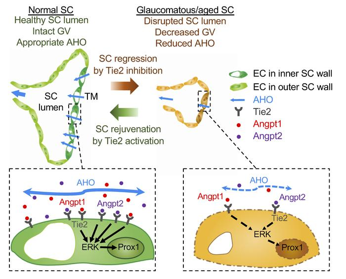 Schematic diagrams depicting how impairment of Angpt-Tie2 signaling disi...